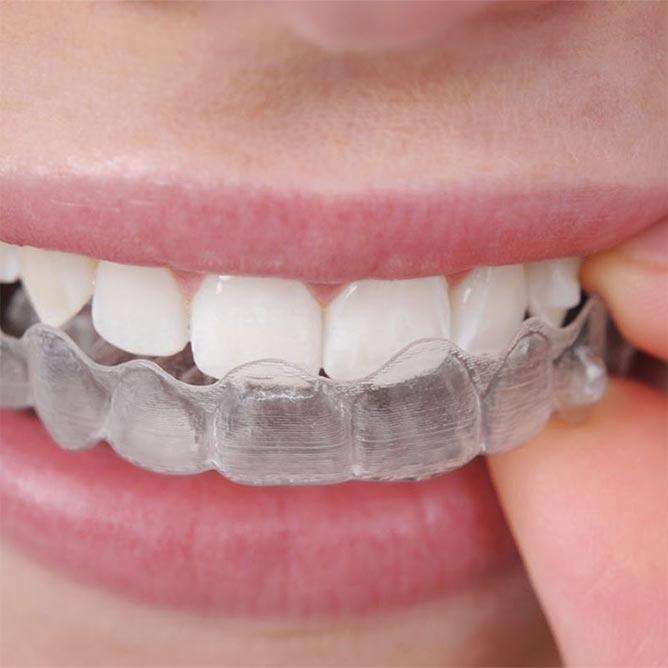 Diş sıkma rahatsızlığı(Bruksizm)