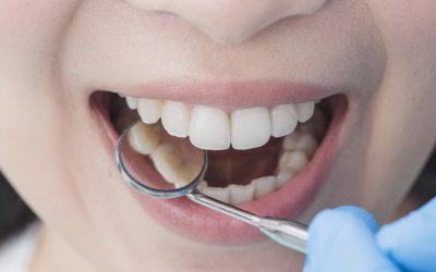 Ağız ve Diş Sağlığınızı Koruyan Mucizevi Besinler