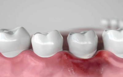 CAUSES AND TREATMENT OF GINGIVITIS