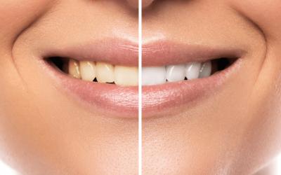 Atalya Diş Hekimi Konyaaltı – Antalya İmplant Uygulama Merkezi