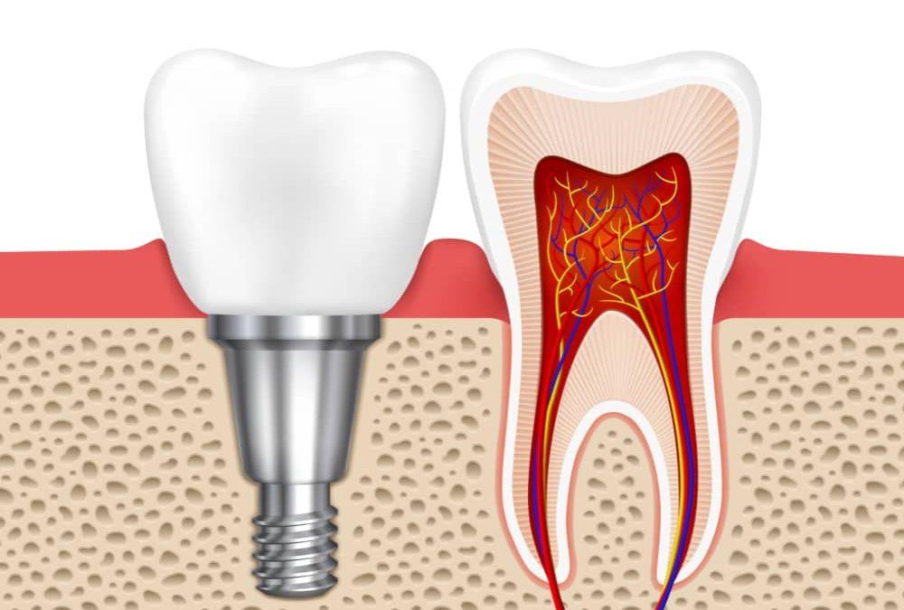 Antalya implant diş