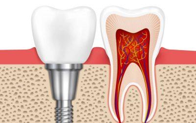 Antalya İmplant Diş Tedavisi ve Antalya İmplant Fiyatları